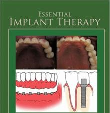 Book Review: Essential Implant Therapy