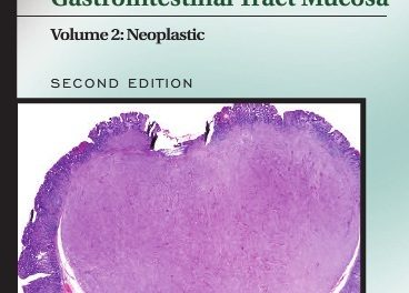 Book Review: Biopsy Interpretation of the Gastrointestinal Tract Mucosa, 2nd edition, Volume 2: Neoplastic