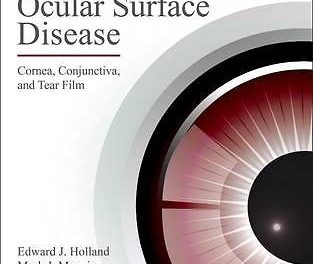 Book Review: Ocular Surface Disease – Cornea, Conjunctiva, and Tear Film