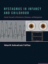 Book Review: Nystagmus in Infancy and Childhood