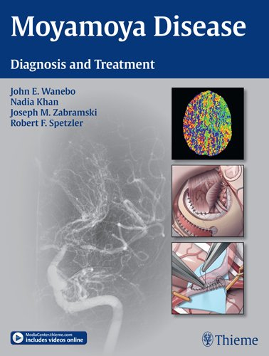 Book Review: Moyamoya Disease: Diagnosis and Treatment