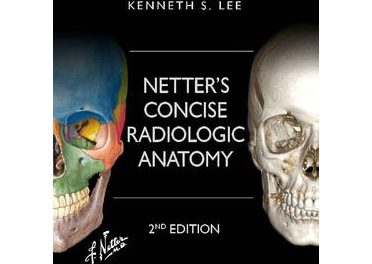 Book Review: Netter's Concise Radiologic Anatomy, 2nd edition