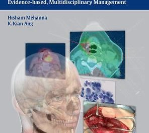 Book Review: Head and Neck Cancer Recurrence – Evidence-Based, Multidisciplinary Management