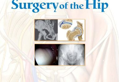 Book Review: Surgery of the Hip
