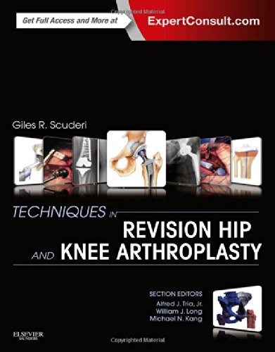 Book Review: Techniques in Revision Hip and Knee Arthroplasty
