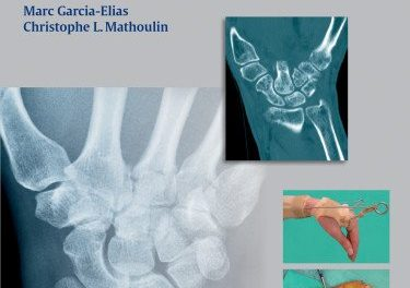 Book Review: Articular Injury of the Wrist – FESSH 2014 Instructional Course Book