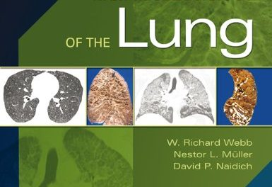 Book Review: High-Resolution CT of the Lung, 5th edition
