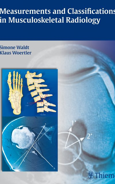 Book Review: Measurements and Classifications in Musculoskeletal Radiology