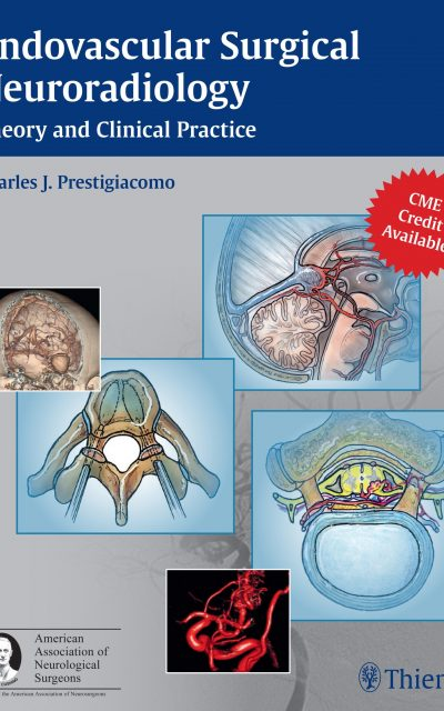 Book Review: Endovascular Surgical Neuroradiology