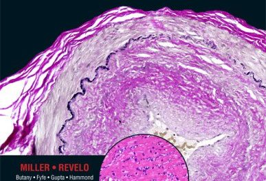 Book Review: Diagnostic Pathology: Cardiovascular