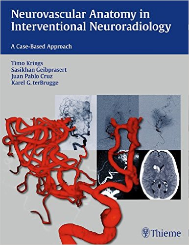 Book Review: Neurovascular Anatomy in Interventional Neuroradiology