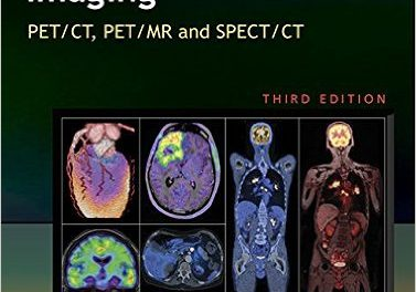 Book Review: Molecular Anatomic Imaging – PET/CT, PET/MR and SPECT/CT,  3rd edition