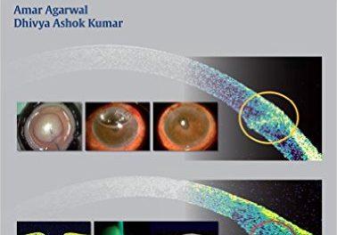 Book Review: Essentials of OCT in Ocular Disease