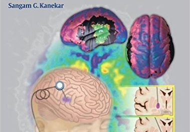 Book Review: Imaging of Neurodegenerative Disorders