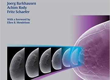 Book Review: Digital Breast Tomosynthesis: Technique and Cases