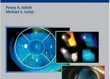 Book Review: Dry Eye Disease – The Clinician's Guide to Diagnosis and Treatment