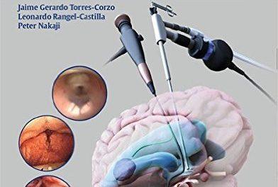 Book Review: Neuroendoscopic Surgery