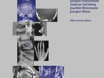 Book Review: Borderlands of Normal and Early Pathological Findings in Skeletal Radiography,  5th revised edition