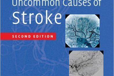 Book Review: Uncommon Causes of Stroke, 2nd edition