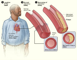 JHU Scientists - Illustration on Surgical Treatment of Atherosclerosis Heart Disease