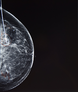 Core Needle Biopsy Hormone Receptor Testing For Breast Cancer Wastes Millions of Dollars