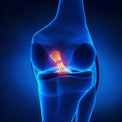 New Evidence That Testosterone May Explain  Sex Difference in Knee Injury Rates