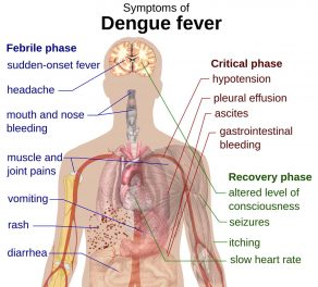 Dengue Vaccine Could Increase Or Worsen Dengue in Some Settings