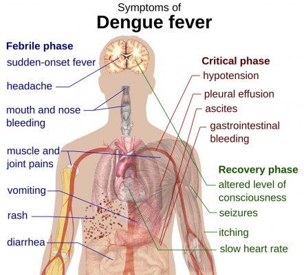 Dengue fever symptoms, credit Wikipedia