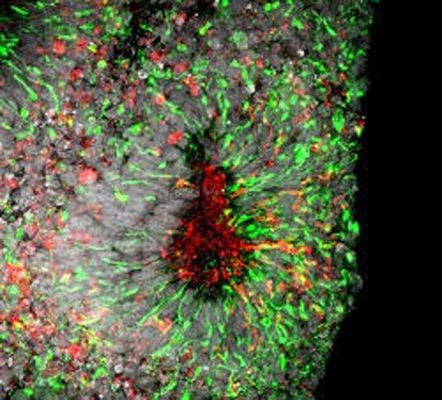 Zika virus infection in cell death in human forebrain organoids, credit Xuyu Qian, Johns Hopkins University