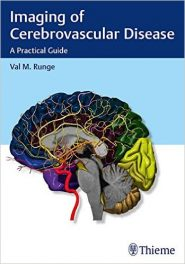 Book Review: Imaging of Cerebrovascular Disease – A Practical Guide