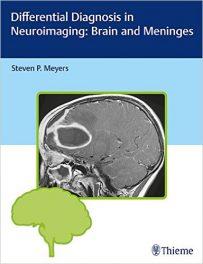 Book Review: Differential Diagnosis in Neuroimaging – Brain and Meninges