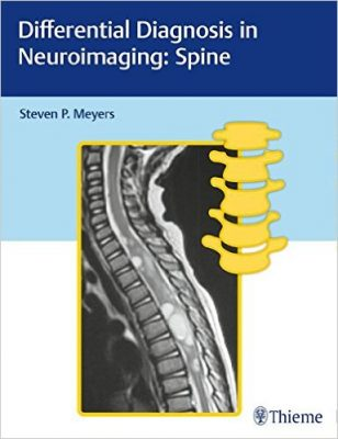 differential-diagnosis-in-neuroimaging-spine