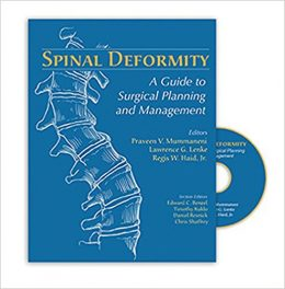 Book Review: Spinal Deformity – A Guide to Surgical Planning and Management