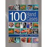 100-hand-cases