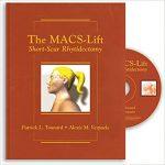 the-macs-lift-short-scar-rhytidectomy