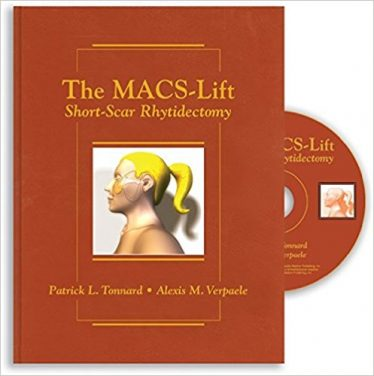 Book Review: The MACS-Lift: Short-Scar Rhytidectomy