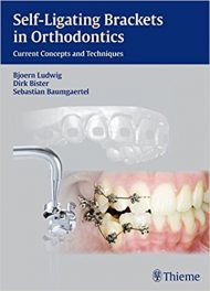 Book Review: Self-Ligating Brackets in Orthodontics