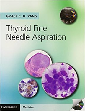 Book Review: Thyroid Fine Needle Aspiration