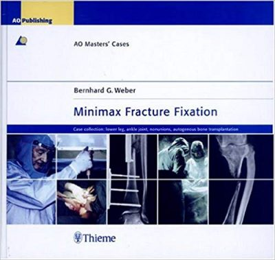 Book Review:  AO Masters' Cases – Minimax Fracture Fixation