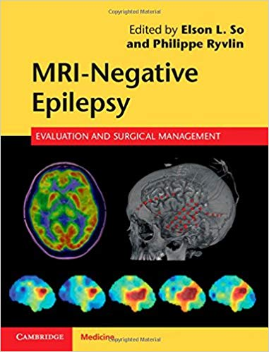 Book Review: MRI Negative Epilepsy – Evaluation and Surgical Management