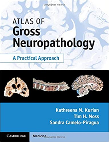 Book Review – Atlas of Gross Neuropathology – A Practical Approach